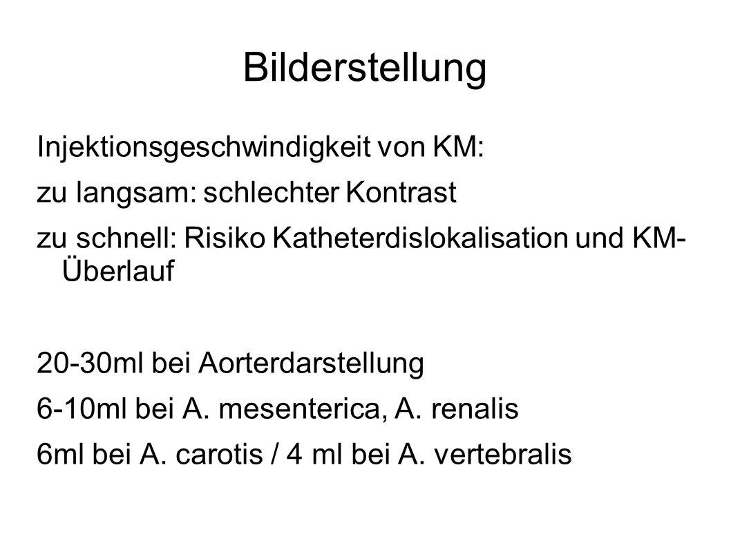 Bilderstellung Injektionsgeschwindigkeit von KM: