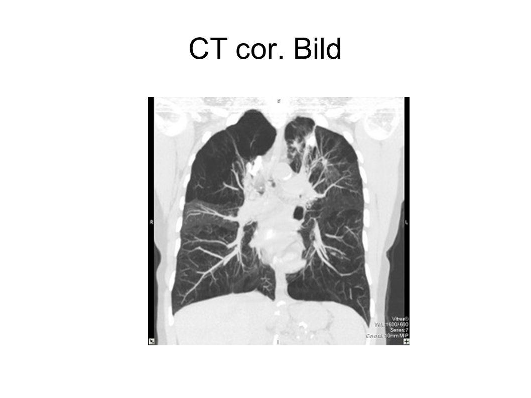 CT cor. Bild