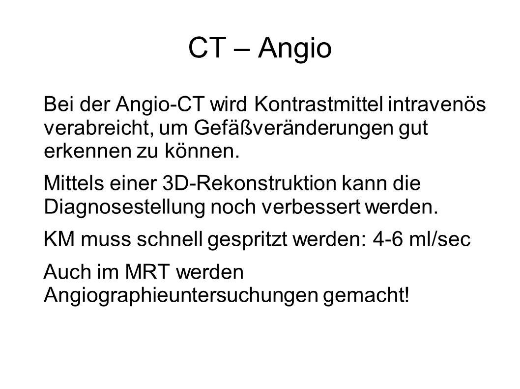 CT – Angio Bei der Angio-CT wird Kontrastmittel intravenös verabreicht, um Gefäßveränderungen gut erkennen zu können.