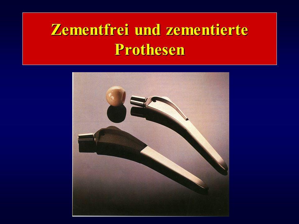 Zementfrei und zementierte Prothesen