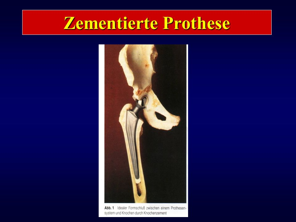 Zementierte Prothese