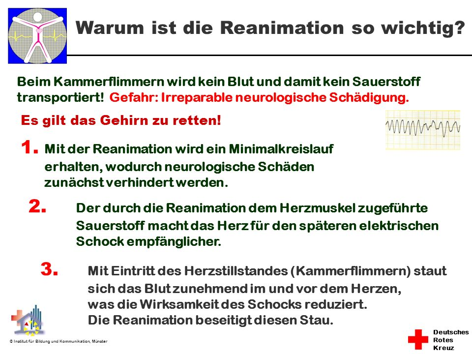 Warum ist die Reanimation so wichtig