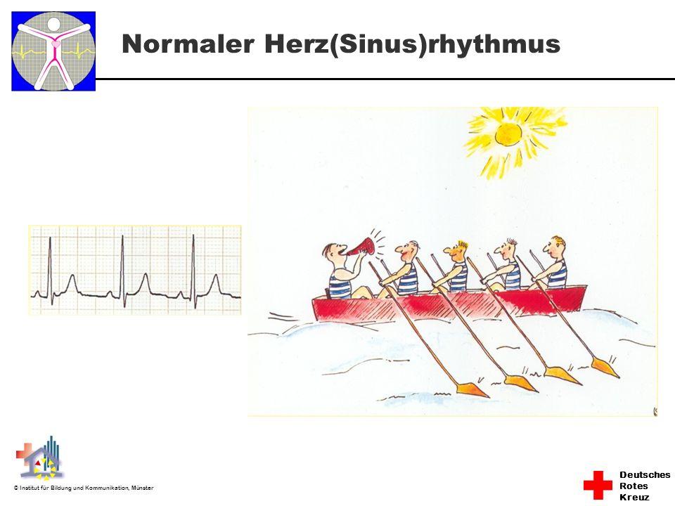 Normaler Herz(Sinus)rhythmus