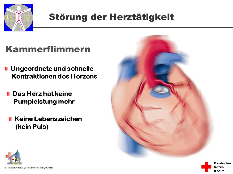 Störung der Herztätigkeit