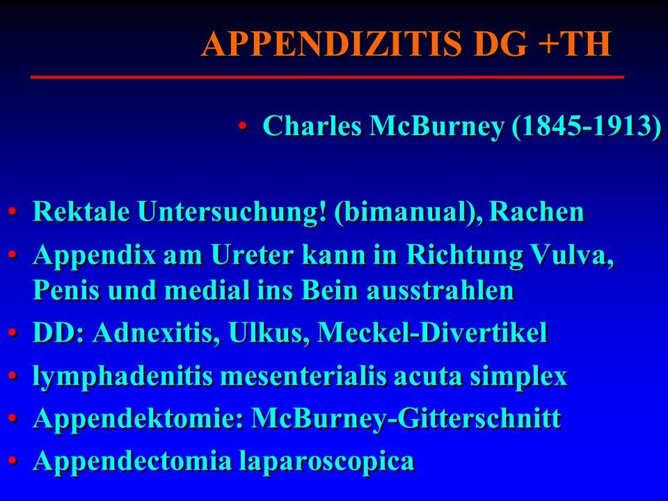 APPENDIZITIS DG +TH Charles McBurney (1845-1913)
