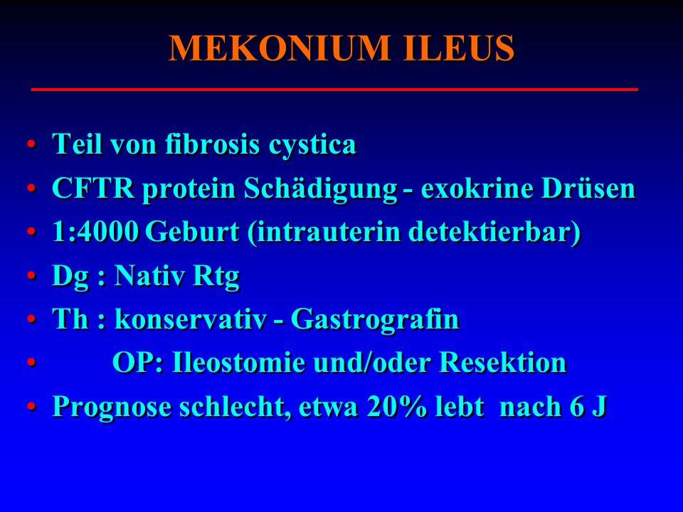 MEKONIUM ILEUS Teil von fibrosis cystica