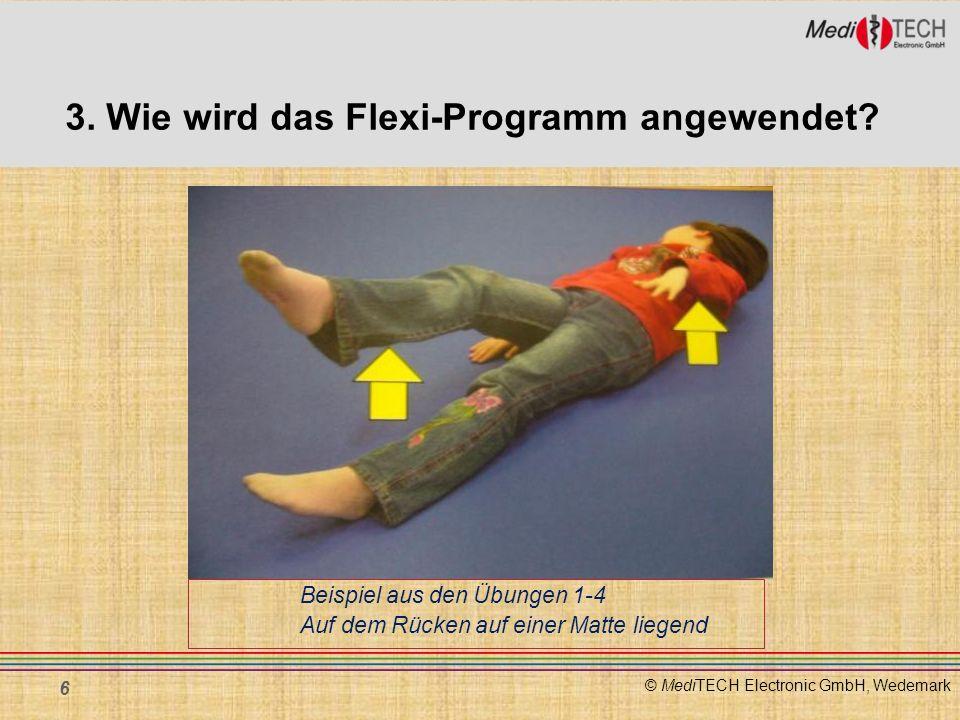 3. Wie wird das Flexi-Programm angewendet