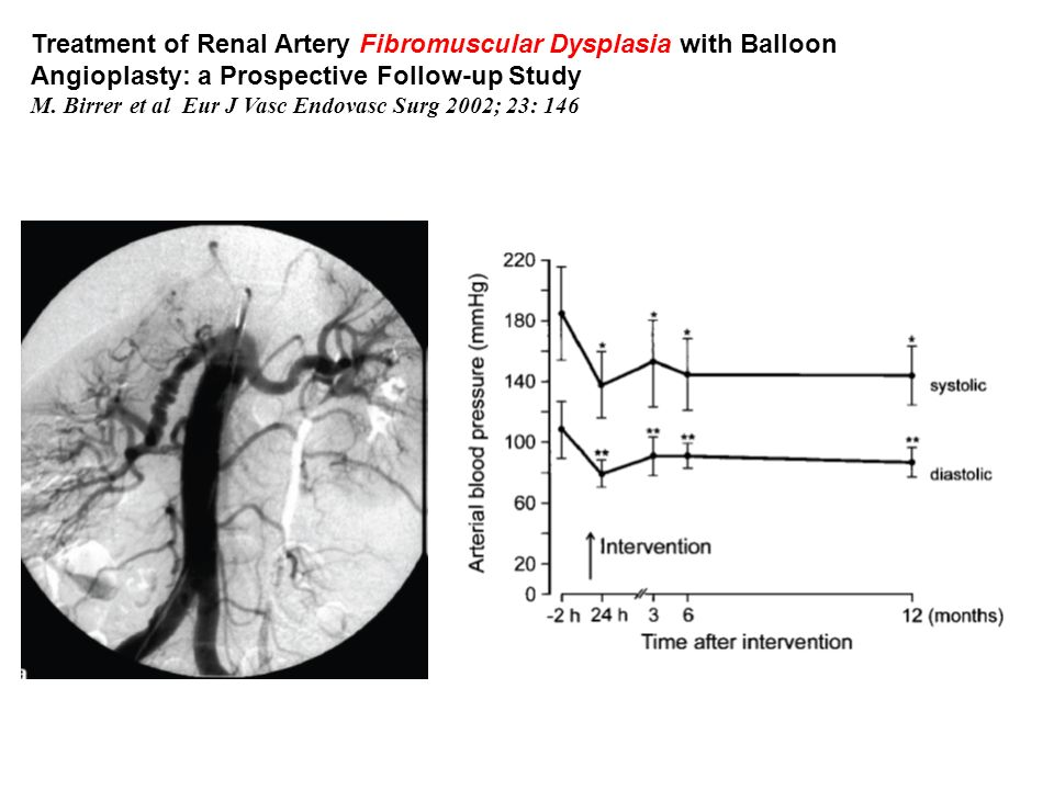 Treatment of Renal Artery Fibromuscular Dysplasia with Balloon