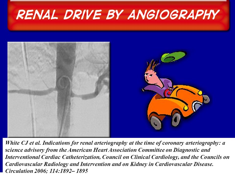 White CJ et al. Indications for renal arteriography at the time of coronary arteriography: a
