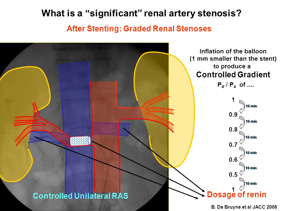 What is a significant renal artery stenosis