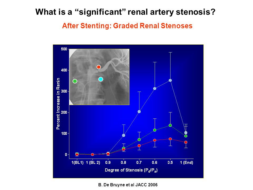 After Stenting: Graded Renal Stenoses