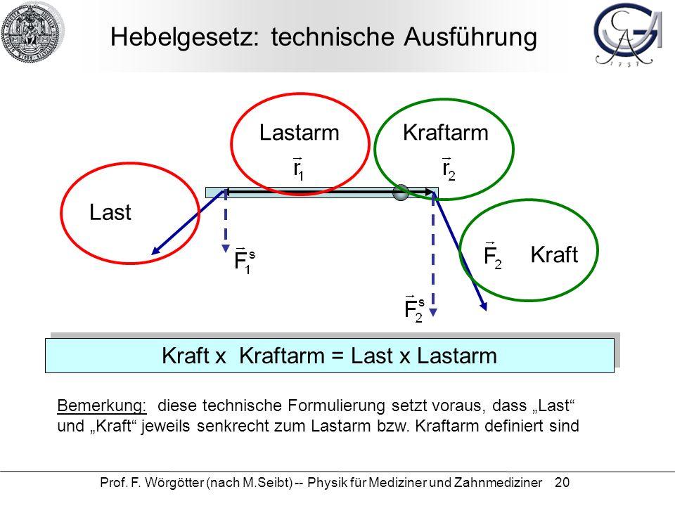 Hebelgesetz: technische Ausführung