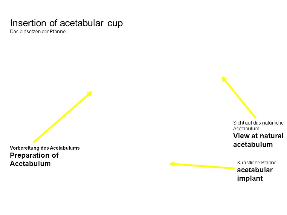 Insertion of acetabular cup