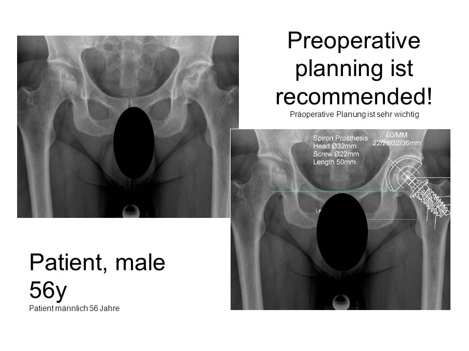 Preoperative planning ist recommended!