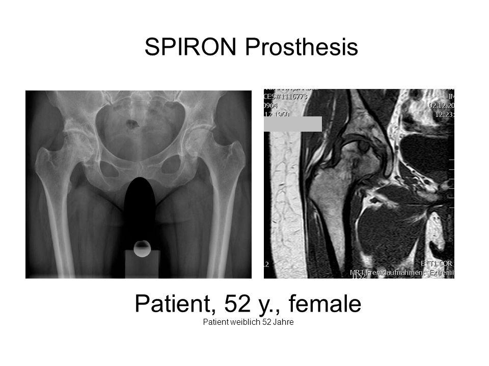 Patient weiblich 52 Jahre