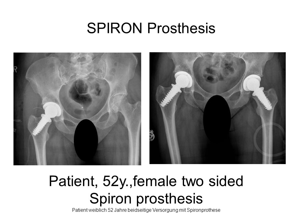 Patient, 52y.,female two sided Spiron prosthesis