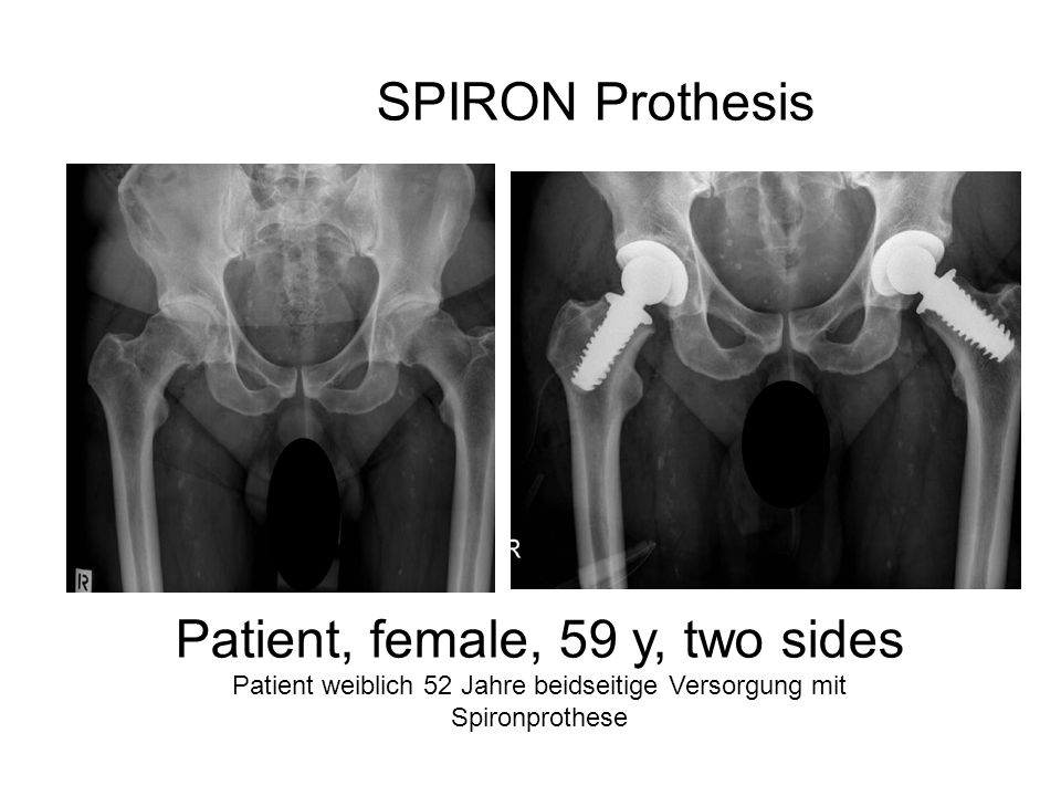 Patient, female, 59 y, two sides