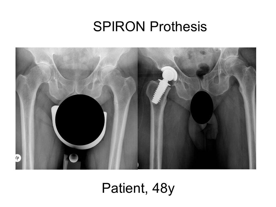 SPIRON Prothesis Patient, 48y