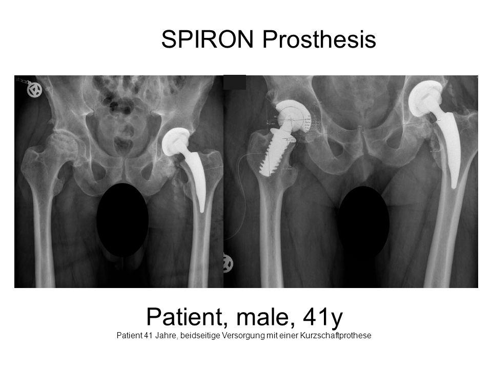 Patient 41 Jahre, beidseitige Versorgung mit einer Kurzschaftprothese