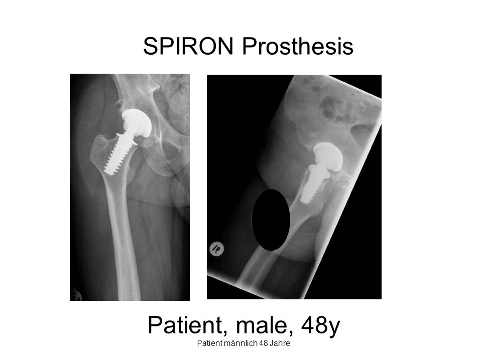 Patient männlich 48 Jahre