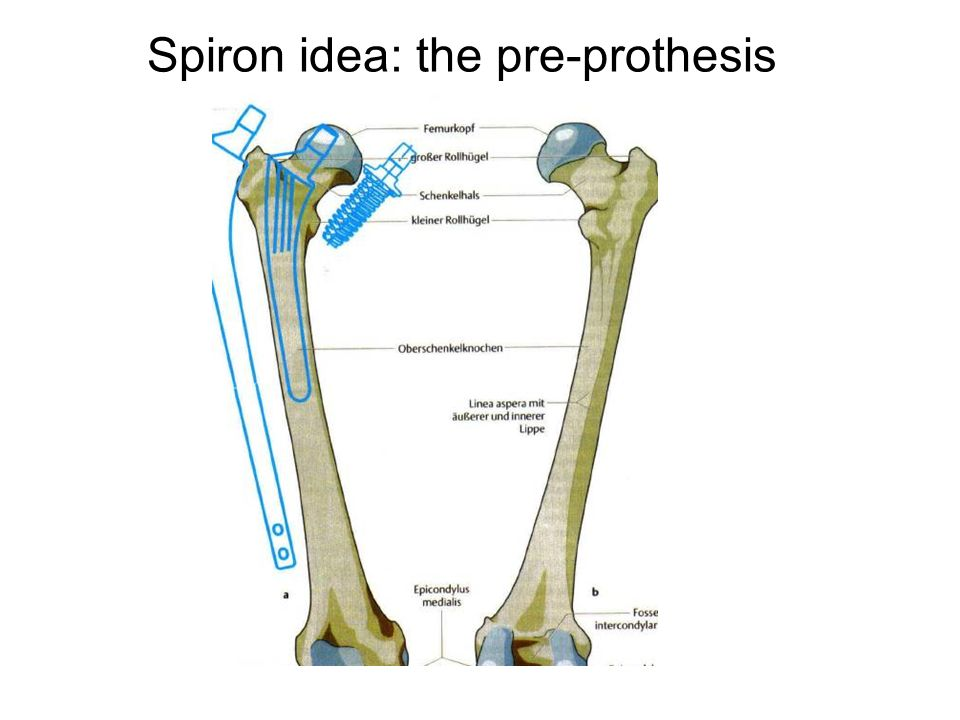Spiron idea: the pre-prothesis