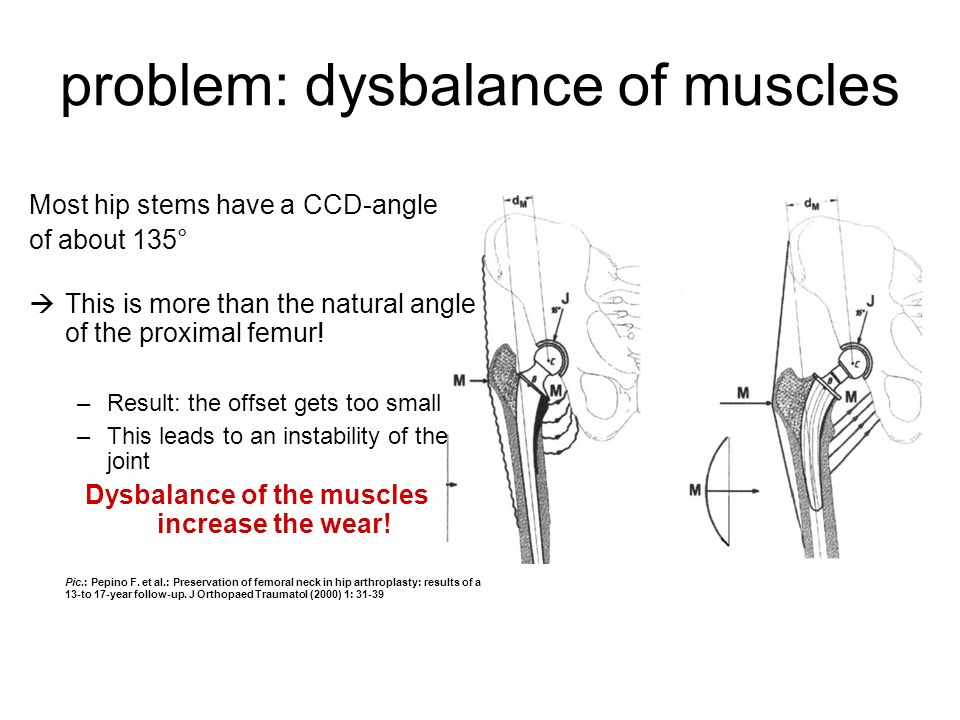 problem: dysbalance of muscles