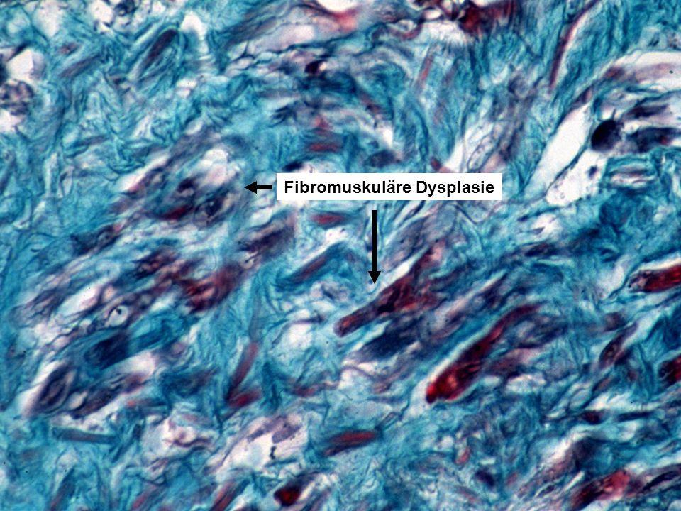 Fibromuskuläre Dysplasie