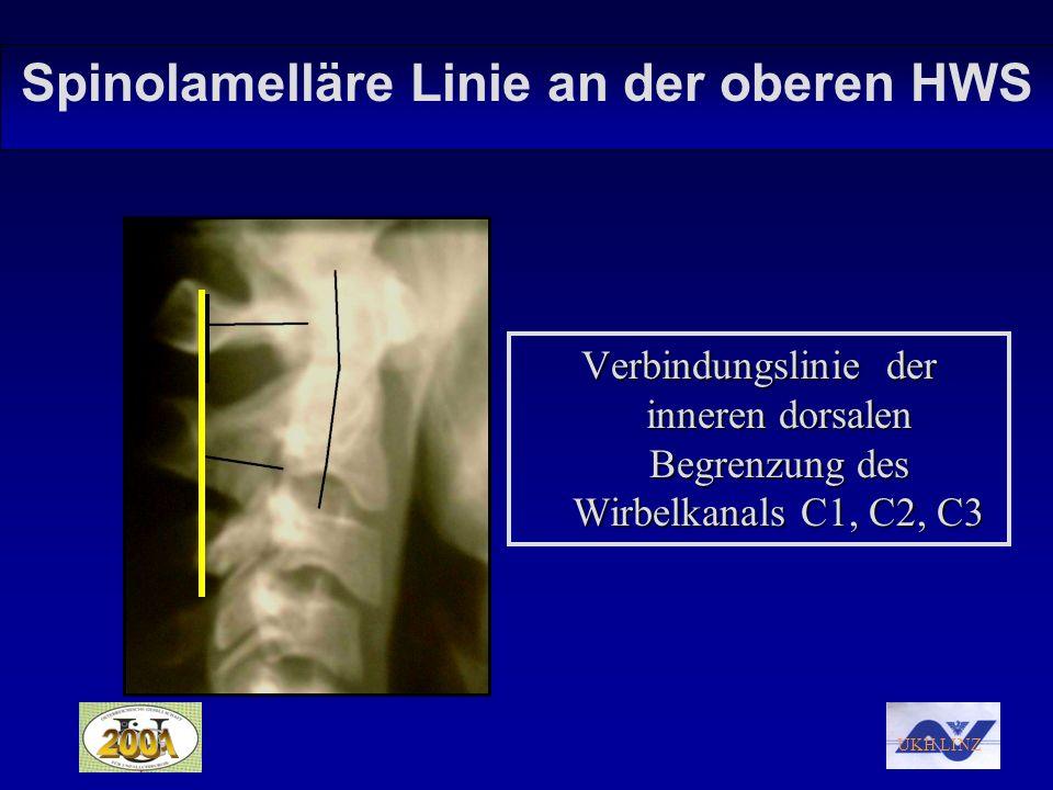Spinolamelläre Linie an der oberen HWS