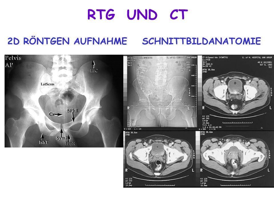 RTG UND CT 2D RÖNTGEN AUFNAHME SCHNITTBILDANATOMIE