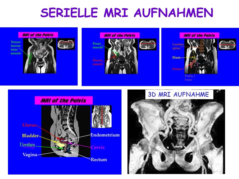 SERIELLE MRI AUFNAHMEN
