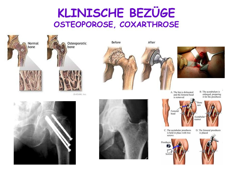 OSTEOPOROSE, COXARTHROSE