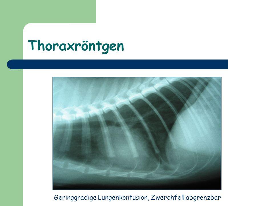 Geringgradige Lungenkontusion, Zwerchfell abgrenzbar
