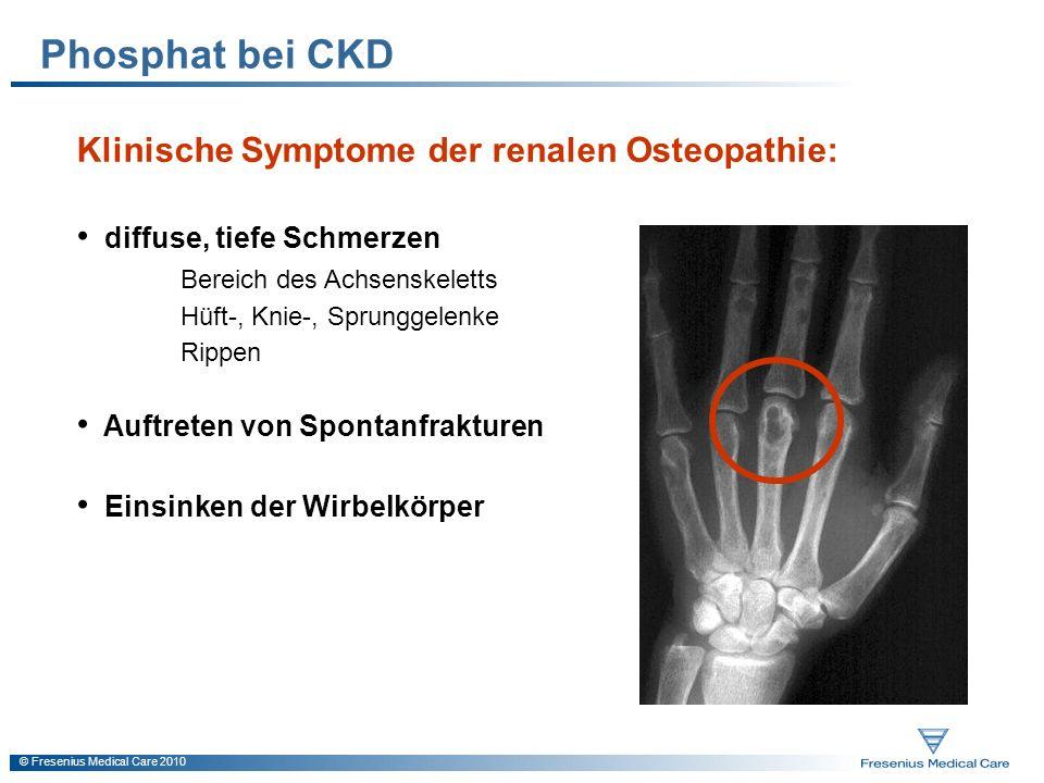 Phosphat bei CKD Klinische Symptome der renalen Osteopathie: