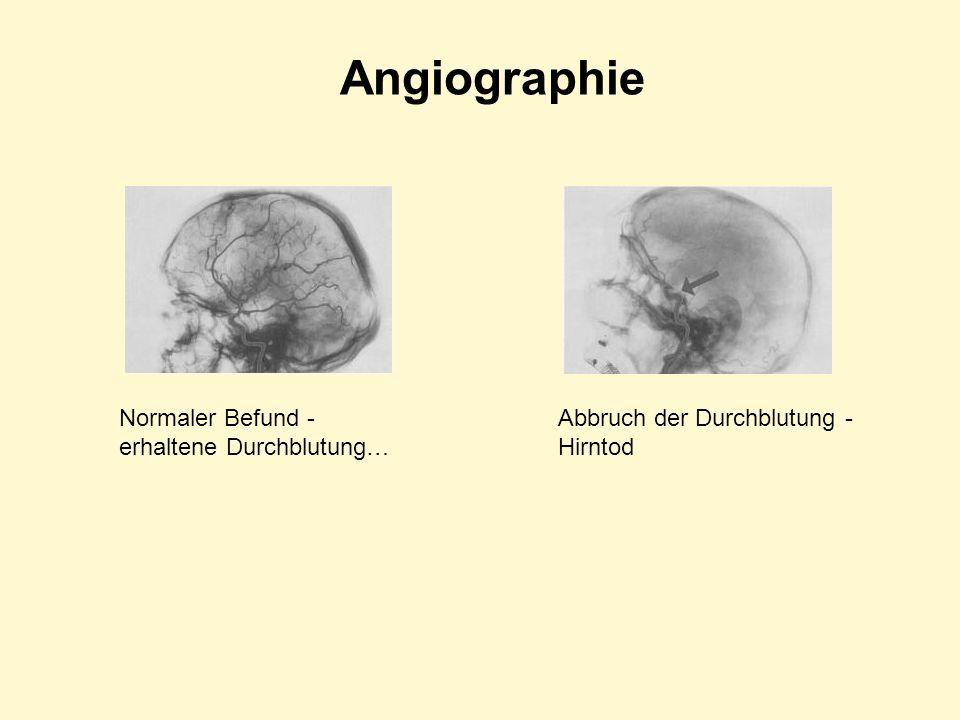 Angiographie Normaler Befund - erhaltene Durchblutung…