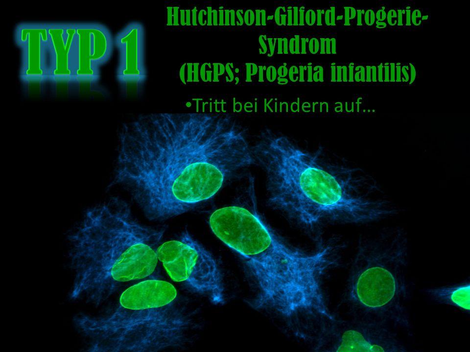 Typ 1 Hutchinson-Gilford-Progerie-Syndrom (HGPS; Progeria infantilis)