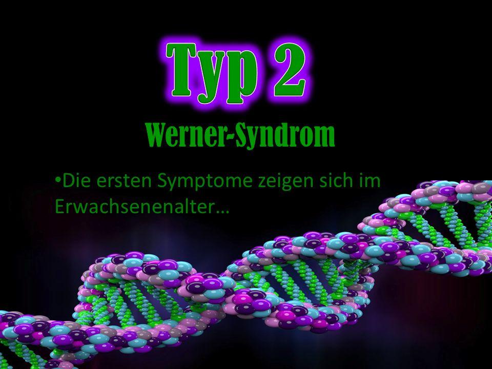 Typ 2 Werner-Syndrom Die ersten Symptome zeigen sich im Erwachsenenalter…
