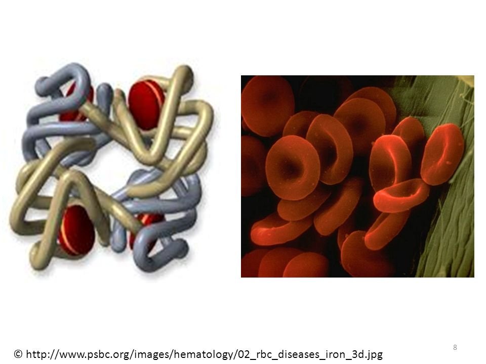 © http://www.psbc.org/images/hematology/02_rbc_diseases_iron_3d.jpg