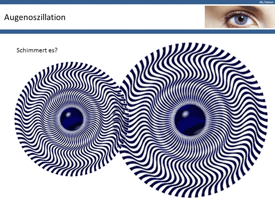 Augenoszillation Schimmert es
