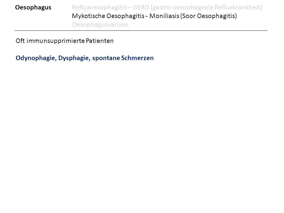 Oesophagus Refluxoesophagitis – GERD (gastro-oesophageale Refluxkrankheit)