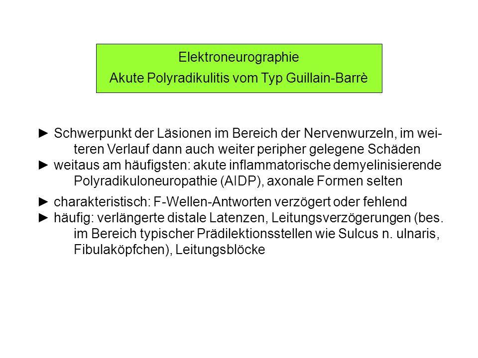 Akute Polyradikulitis vom Typ Guillain-Barrè