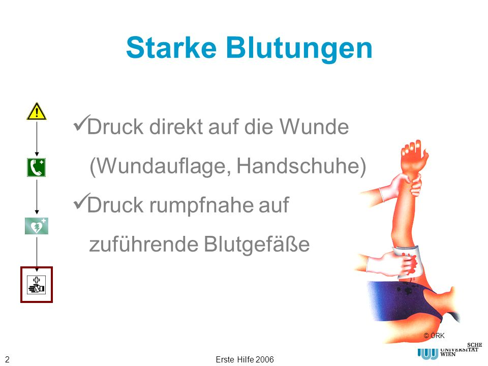 Starke Blutungen Druck direkt auf die Wunde (Wundauflage, Handschuhe)