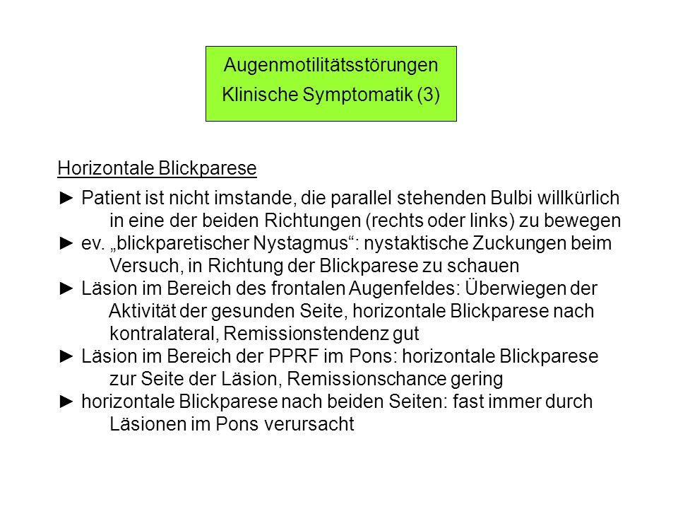 Augenmotilitätsstörungen Klinische Symptomatik (3)