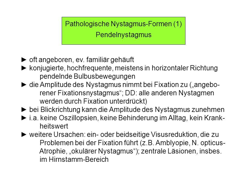 Pathologische Nystagmus-Formen (1)