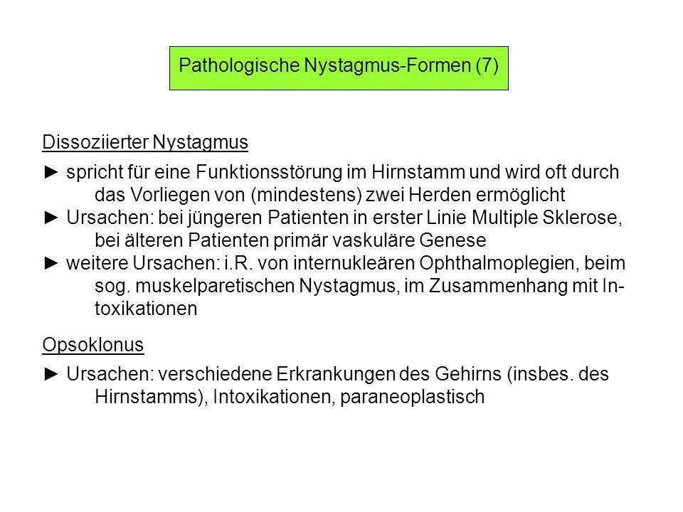 Pathologische Nystagmus-Formen (7)