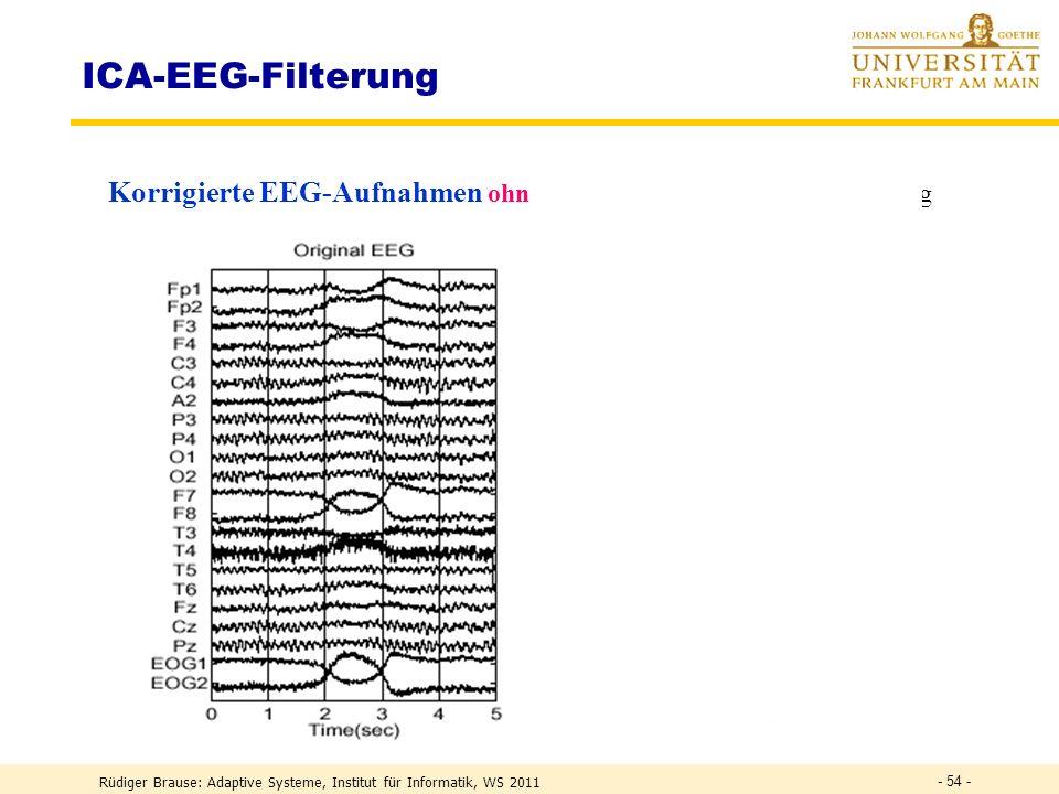ICA-EEG-Filterung Korrigierte EEG-Aufnahmen ohne 5 ICA-Muskelaktivitäten, Mischung. Also: ICA ist geeignet, um EEG-Artefakte zu unterdrücken.