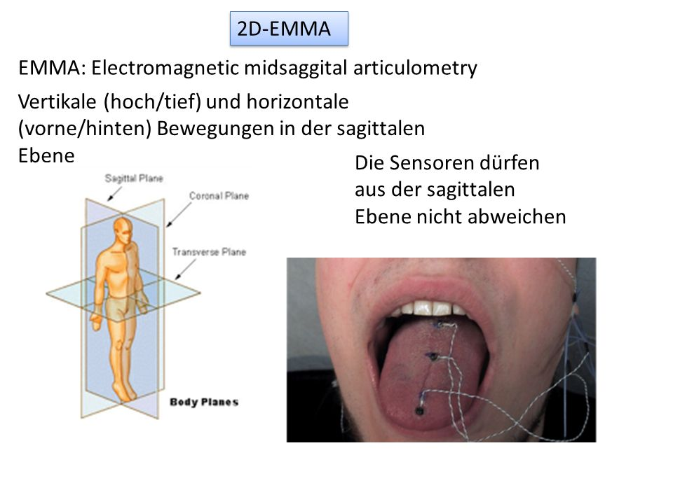 2D-EMMA EMMA: Electromagnetic midsaggital articulometry. Vertikale (hoch/tief) und horizontale (vorne/hinten) Bewegungen in der sagittalen Ebene.