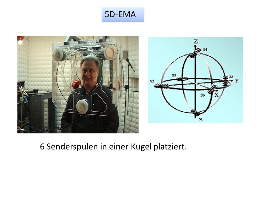 5D-EMA 6 Senderspulen in einer Kugel platziert.
