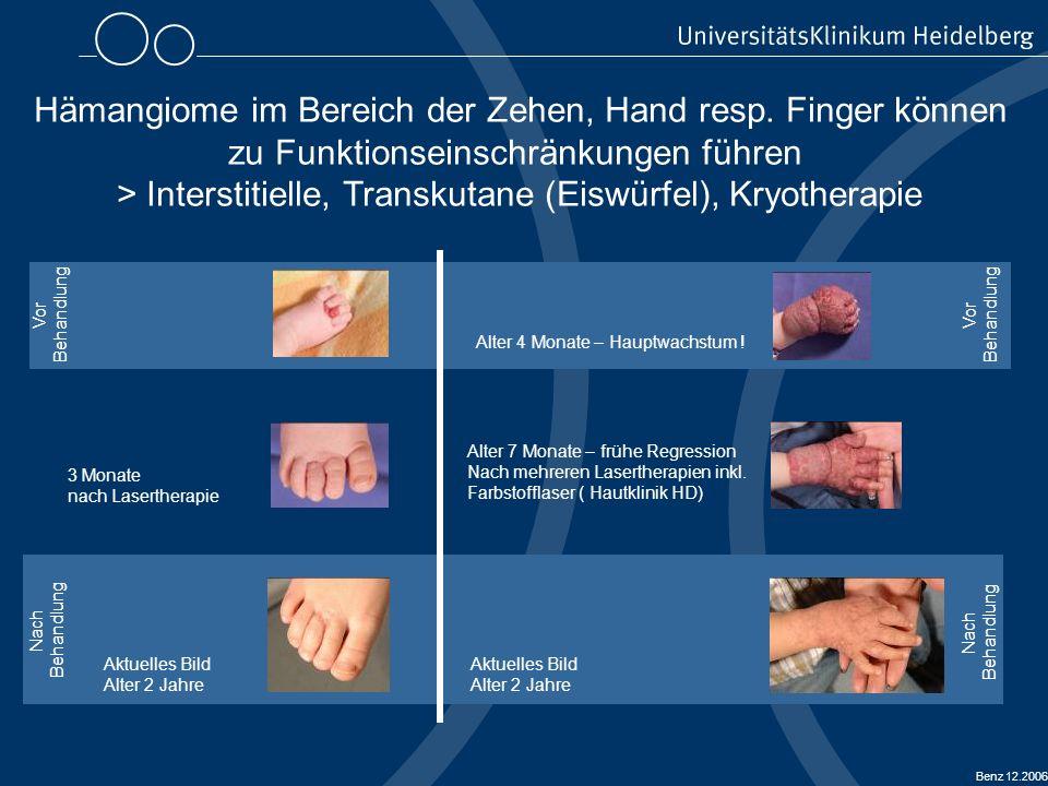 Hämangiome im Bereich der Zehen, Hand resp. Finger können