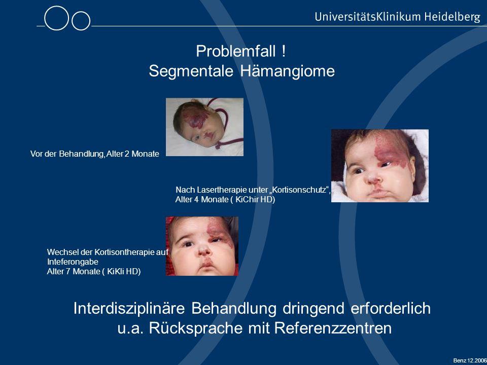 Segmentale Hämangiome