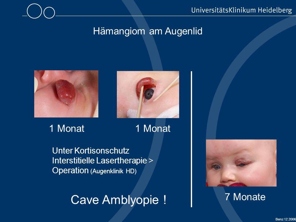 Cave Amblyopie ! Hämangiom am Augenlid 1 Monat 1 Monat 7 Monate